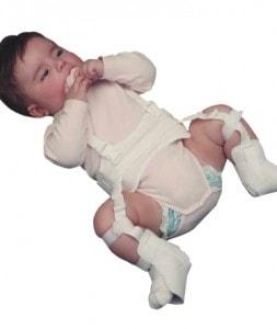 Ortoza za isčašene kukove beba (Pavlikovi remeni)